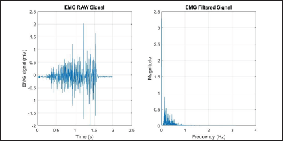 A Comprehensive Study on EMG Feature Extraction and Classifiers