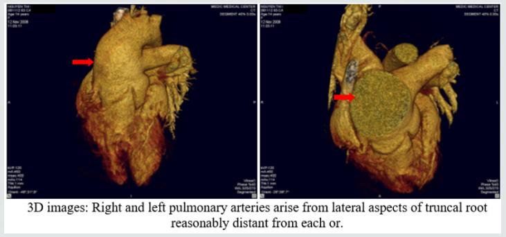 Lupinepublishers-openaccess-cardiology