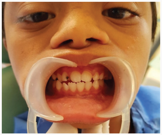 Lupinepublishers-openaccess-dentistry-oral-healthcare