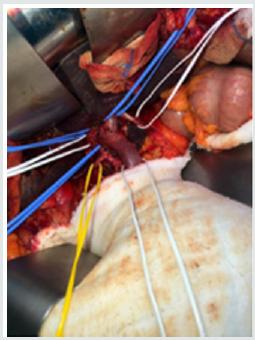 Archive: Gastroenterology Journal | Open Access Journals