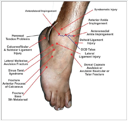 Persistent Pain After Lateral Ankle Sprain A Diagnostic And Treatment Dilemma A Review Article
